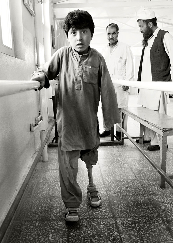 Ataqullah trying his new leg at the ICRC limb-fitting centre in Kabul.