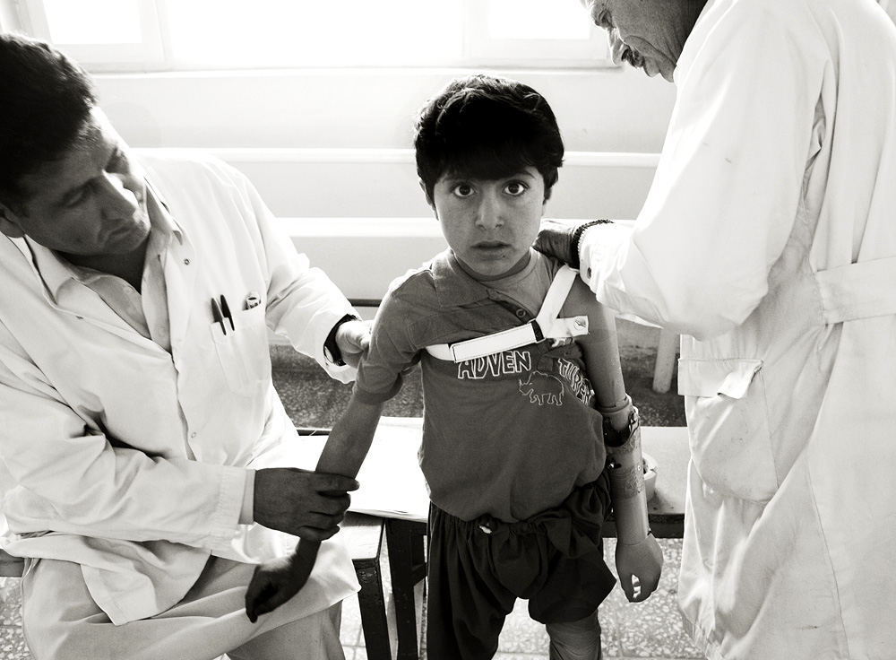Staff at the ICRC fit Ataqullah with his first prosthetic arm.