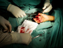 Emergency's surgeons work on Sediqullah's hands.