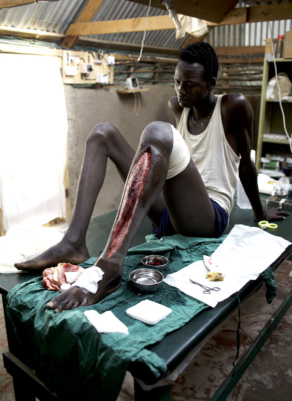 A Nuer fighter, shot through the calf. In order to relieve the pressure the MSF doctor had to remove the skin from the front of the leg. It was still possible that the leg would have to be amputated.