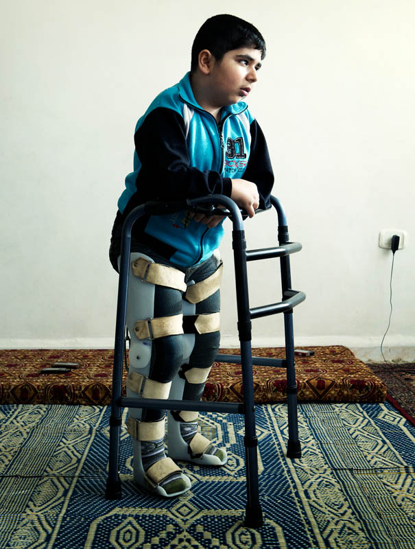 Bashar was 12 years old when a tank shell landed near his house. The shrapnel shattered his leg. Delayed treatment meant his recovery has been painful and slow, made worse by the fact he already suffered from juvenile arthritis. Bashar is now getting the appropriate physiotherapy from Handicap International, and longs for the day when he can return to Syria and to school. He lives with his family on the 5th floor of an apartment in Jordan and is therefore unable to go outside.