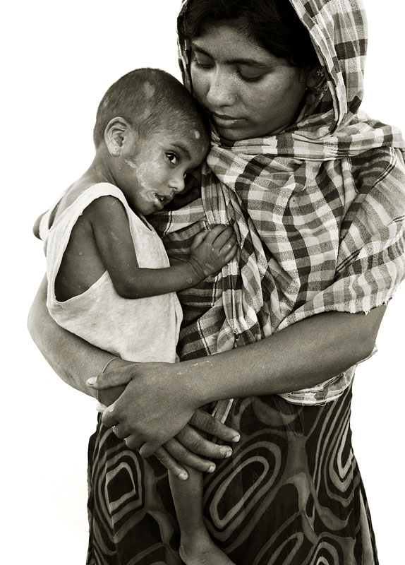 Nur 20, with son.He has severe malnutrition.