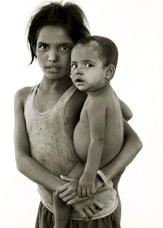 <b>Fatima 10, with her brother Noru.</b>Noru has skin infections caused by malnutrition.