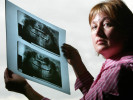 Joy Acey, from Snohomish, WA, holds up an xray of her mouth taken shortly after her wisdon tooth surgery with Dr. Florian Thompson went awry on May 13, 2005.