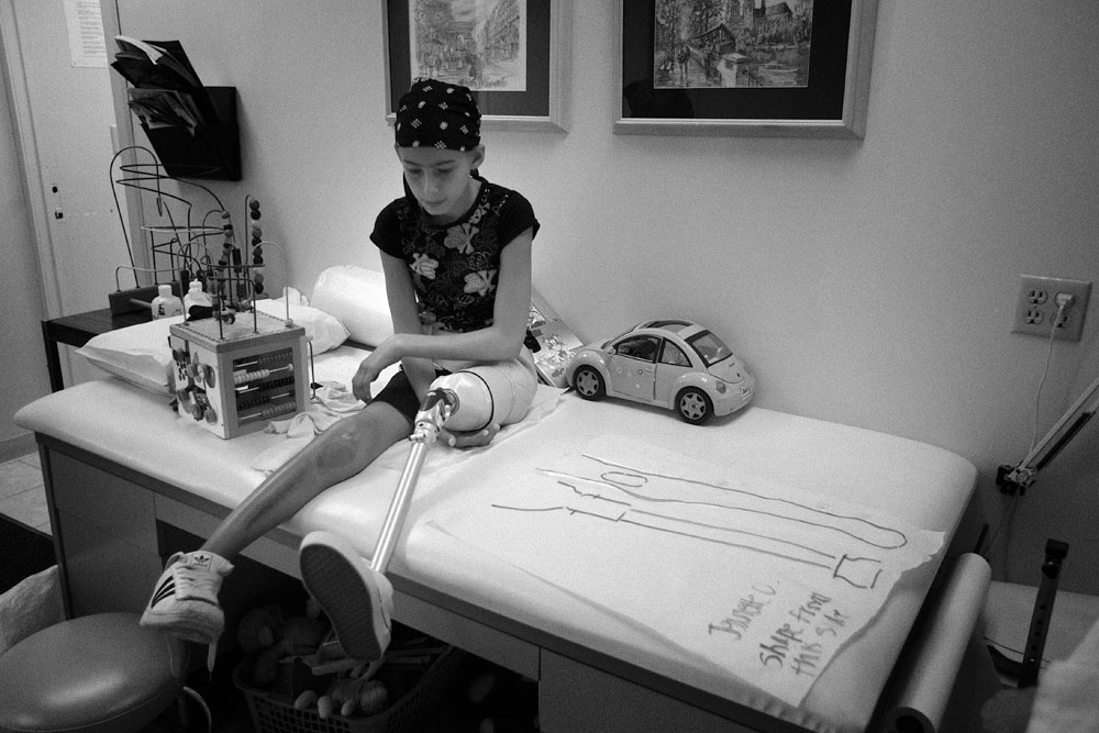 jeanette-prosthetic-leg-trace