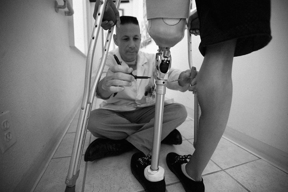jeanette_s-legs-steve-adjust-prosthetic