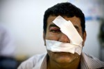 An Iraqi civilian, injured by a suicide bombing at a Kurdish protest march, in a Kirkuk area hospital.
