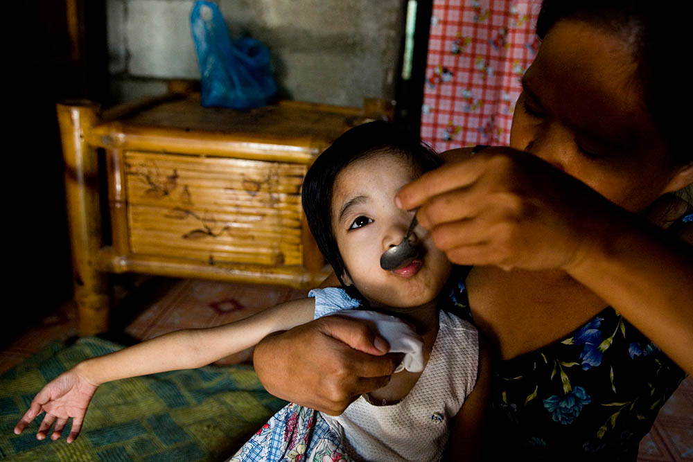Rose Ann Calma, 8, is fed by her mother, Susan.