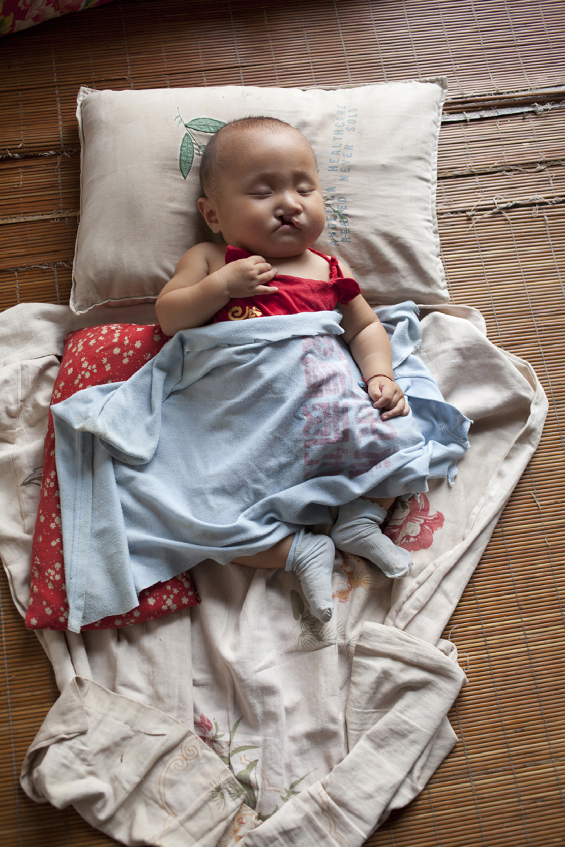 An orphan boy, abandoned in a small village in rural China, begins his journey to repair a cleft palate.