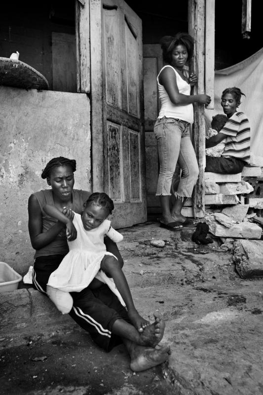 edit_haiti11haiti_amputees_