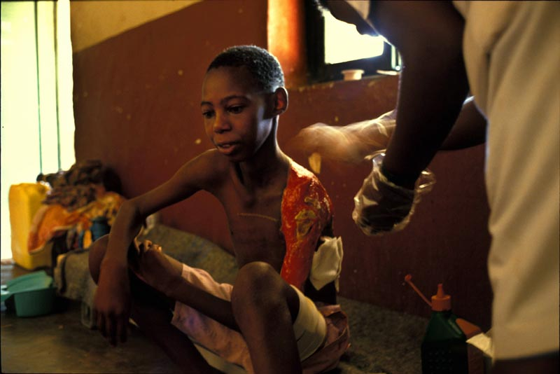 A young boy, who's shoulder was chopped off, is tended to after surviving a massacre. Kigali, Rwanda, May 1994.