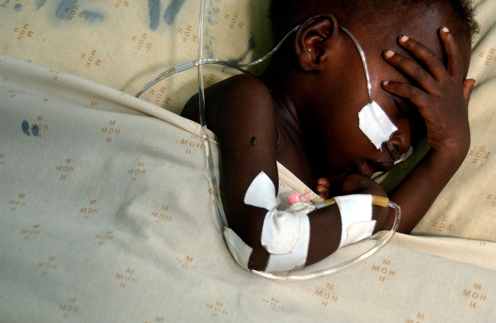 A young boy (almost 2yrs old) at the high dependecy unit of the pediatrics ward at the Lilongwe Central Hospital.  The boy was admitted to the hospital on May 16, 2004 suffering from cynotic heart disease, pneumonia and anaemia. May 2004