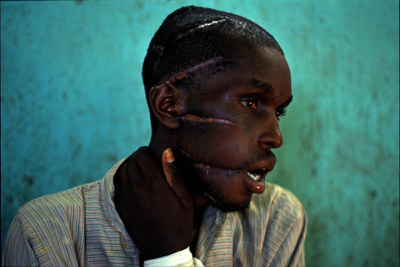 A moderate Hutu, with brain injuries after being attacked for being a Tutsi sympathiser, sits in a makeshift hospital in Nyanza, Rwanda, June 1994.