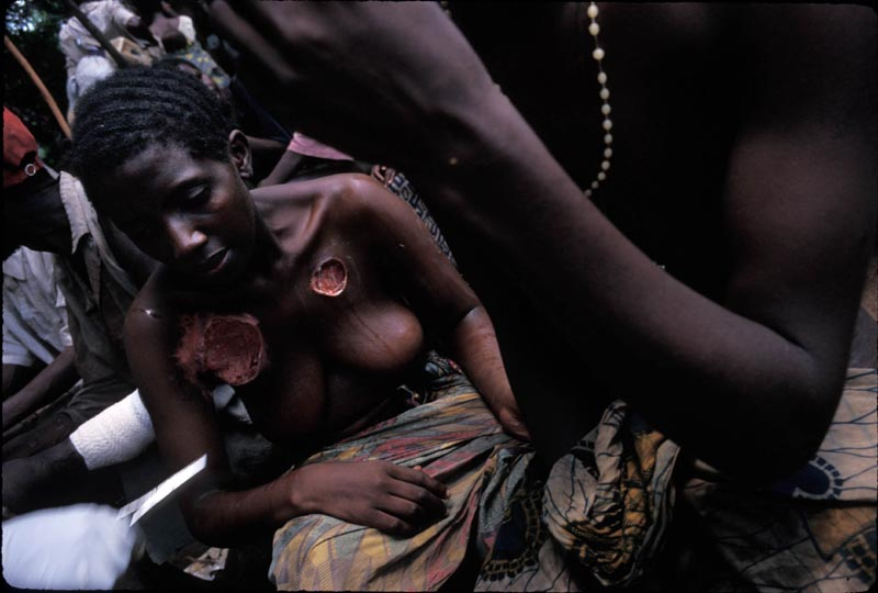 Two injured Hutu women wait for medical treatment at the Biaro refugee camp in the Democratic Republic of Congo. The camp came under attack by Rwandan and DRC military. The refugees that weren't killed returned emactiated and with terrible injuries. May 1997