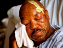 Clarence Webber uses a rag to wipe dried blood from his face as he lies in a bed at Parkland Memorial Hospital in Dallas. Webber, 59, was one of two people attacked in West Dallas by roaming pit bulls that had escaped from a yard. The mauling left Webber with deep lacerations around his face and hands.