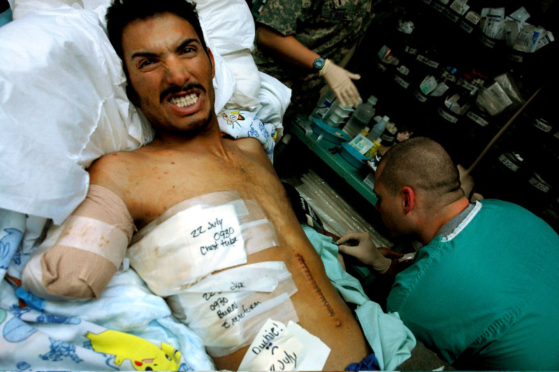 A gravely wounded Iraqi soldier grimaces during treatment.  He was running a fever of 105.0 degrees after being transferred to Baghdad from an overfilled American medical facility in Balad, Iraq.  Dark humor is written on his bandages.  Underneath descriptions of treatment and injuries (22 July chest tube, 0930 burns) someone has written 'Ouchie,' and drawn a frowning face : (.  The transfer was carelessly performed, and nearly a dozen severely wounded soldiers came in at once, with only a few minutes warning.  One man, a double amputee, had a fever of over a 106.0 degrees.  He was waving his arms at hidden threats and weakly yelling 'allah, allah, allah' while his festering stumps had their dressings changed.