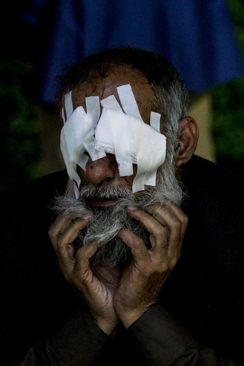 2017. Erbil. Iraq (Kurdistan). The EMERGENCY NGO hospital in Erbil which treats casualties from the battle of Mosul.  A man badly injured by shrapnel to the eyes in Mosul waits for a taxi after being checked at the hospital.