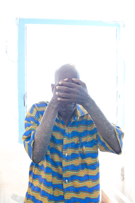 A man hides his face after recounting the story of his injuries from post-election violence. When advancing pro-Ouattara foces attacked his village, his legs were set on fire, and he was badly burned and beaten.
