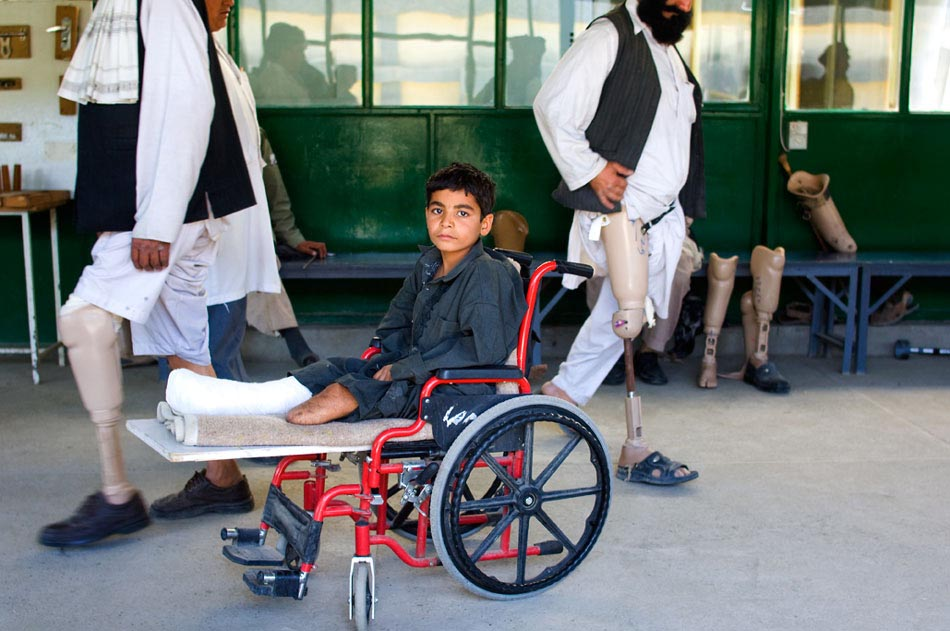 Boy who lost legs to landmines