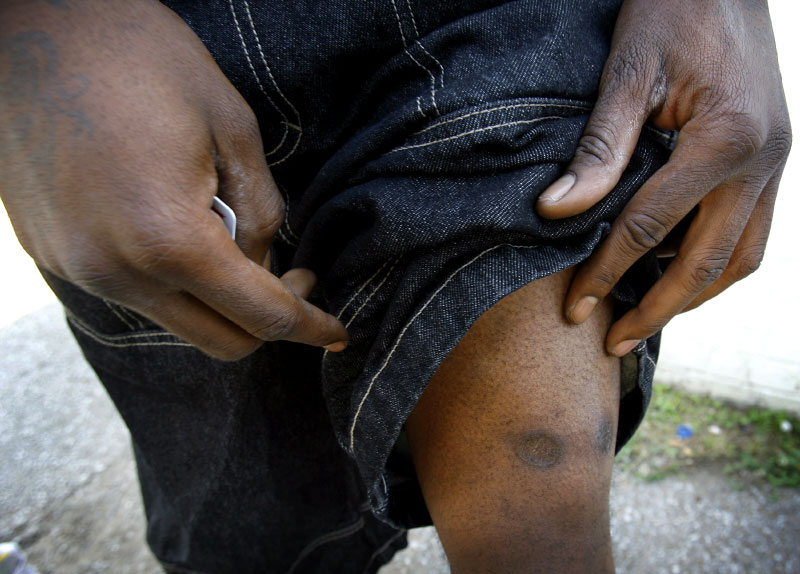 This man shows off a bullet wound from what he said was an attempt on his life. Although he denied any gang involvement, officers say his tattoos, one of which covered his entire back depicting a jack-in-the-box smoking a blunt while holding two semi-automatic pistols, indicate otherwise.(Mike Brown/ Memphis Commercial Appeal)