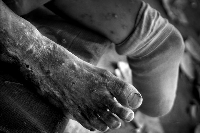The foot of a homeless man is covered in sores and is testament of his hardships after loosing his leg in the military. With poor healthcare and little government assistance many victims are left to fend for themselves.(© Mike Brown)