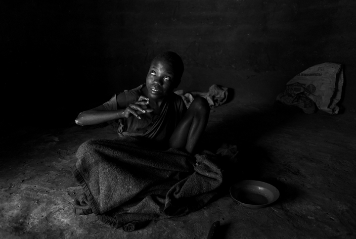 September 15, 2014 - Lubiri Village - Nodding Syndrome (NS)) victim Lakony Walter, 17, started getting sick with the illness when he was three years old; he lost the ability to speak at seven and has not been able to walk for four years - he stays in his living quarters 24-hours a day, seven days a week. Lakony has not taken any medication in four months because his family lost his record book (a history of his case) in a house fire; his mother has been told by a health official to get him back on medication. He's one of four children and the only one with the illness. NS causes him to have epileptic seizures, which when he falls causes him to bang his body repeatedly on the ground; the wounds on his elbow are the result of such banging.