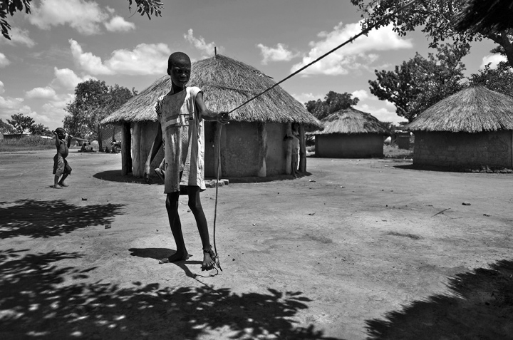 David Okot, 18, stands  outside his hut. Okot represents a severe case of Nodding Syndrome; he has been ill with it since 2003. He's tied to his living quarters 24-hours a day, seven days a week. At an advanced stage the syndrome causes its victims to wander aimlessly, hence families will tie the person with a rope or chain to prevent them from getting lost, injured or in the case of a young woman raped.