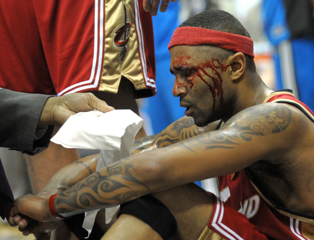 Cleveland Cavaliers guard Mo Williams sits bloodied after taking an elbow from Orlando Magic guard Anthony Johnson during the first half of Game 3 of the NBA Eastern Conference basketball finals in Orlando, Fla., Sunday, May 24, 2009.