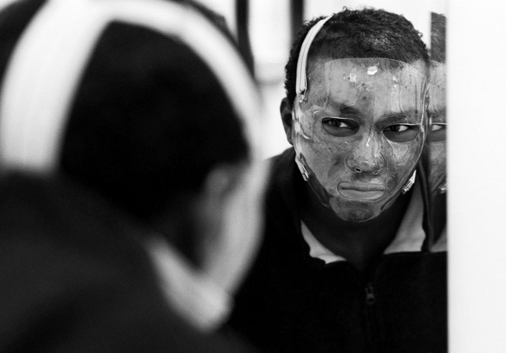 Shawn looks at himself as he tries on his custom-made mask, which reduces facial scarring. He finds the mask to be tight, hot and scary and decides he will deal with some disfigurement and skin discoloration rather than wear it 12 hours a day.