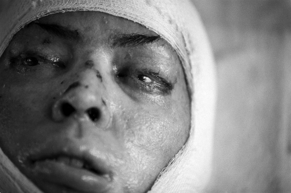 While Shawn is well into his recovery, his roommate Alvaro Llanos is still fighting for his life. Alvaro was burned over 58% of his body. Three months after the fire he stares aimlessly into space as he awakens from his coma, his eyes paritally sewn shut by the  doctors to protect his corneas.