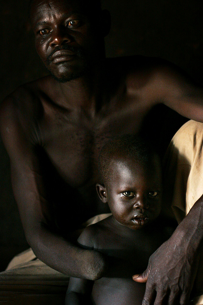 Onikalit Constantine, age 38, a father of nine, sits next to his young son in Umyama, a camp for displaced people in Northern Uganda, 2005. The Lord's Resistance Army (LRA) accused him of collaborating with the Ugandan army. The rebels cut one of his hands off. The rebel group has brought terror to Northern Uganda for almost twenty years, fighting the Ugandan government. The victims are usually children, which are abducted and used as child soldiers and sex slaves. Many of the abducted people are forced to perform gruesome acts and are usually brainwashed when initiated in the LRA.