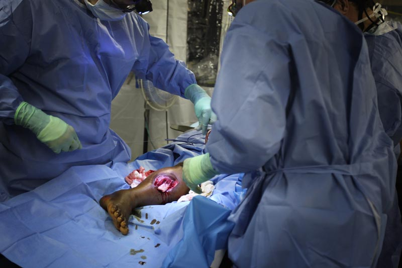 Doctors rushed to save the leg of a woman with an open compound fracture. They did not amputate during that surgery, but her prognosis was shaky at best. The medical teams did what they could to preserve limbs because of the huge challanges and stigma amputees face in Haiti.