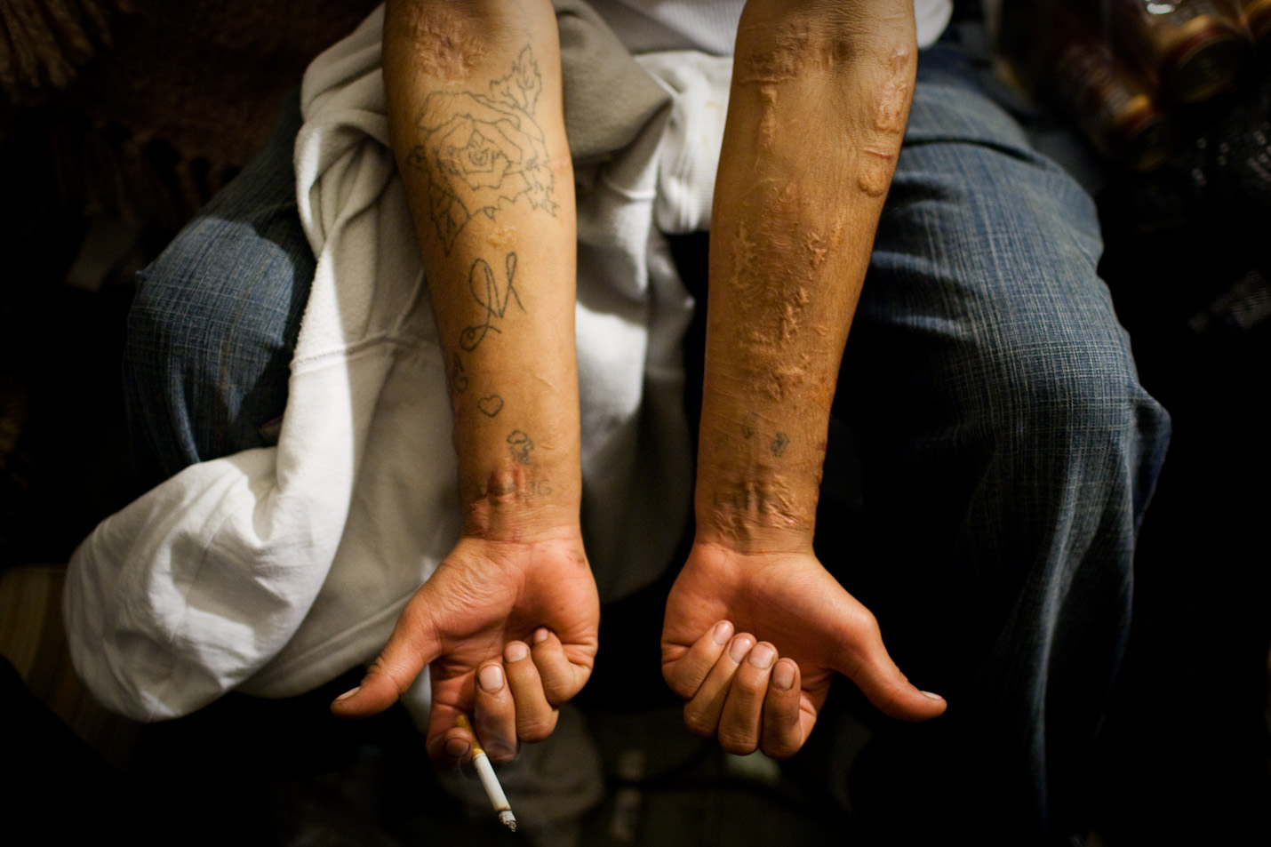 Leston Moran, 24, displays the scars of attempted suicide on Pine Ridge Reservation in South Dakota on Thursday, October 22, 2009.  Moran, recently released from prison for armed robbery, tried to kill himself in prison when his grandmother passed away and he wasn't able to attend the services.