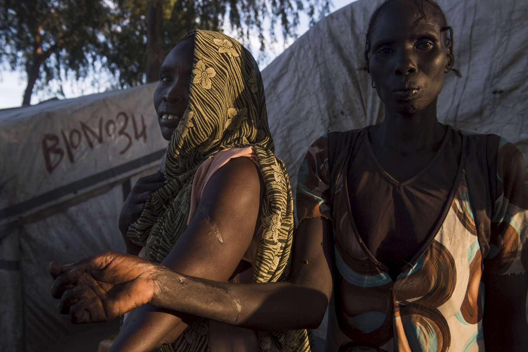 Anna Nyachout, left, and Elizabeth Nayandang, 48, right, residents of the Protection of Civilians (PoC) site adjacent to the United Nations Mission in South Sudan base in Bor show their scars from bullet wounds suffered during the conflict.  The women are seen on Tuesday, 31 Oct. in Bor, South Sudan.