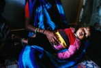 Gaurav, 2, suffers from the contaminated water. Her mother, Bhawana,24, especially worrys about Gaurav's urinary malfunction and skin rash.