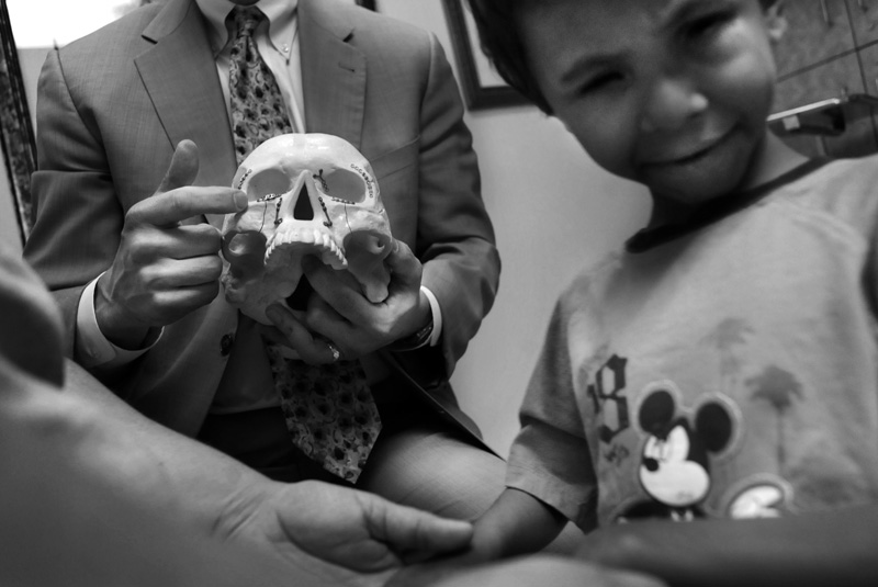 Dr. Robert Fante, left, uses a fake skull to explain the operation that was done on Pandu Fayre the week before at the Fante Eye & Face Centre in Denver, Colo. Friday 05/29/09.  Fante operated on Pandu Friday 05/22/09 to remove a cyst from his left eye socket.  The Fayre's want to get prosthetic eyes for Pandu, but had to remove the cyst before that could happen.  Photo by Matt McClain