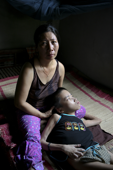 Hien Duong, 12, who being cared for by his mother in the Benh Vien district, Da Nang Vietnam. He has been bed ridden most of his life from health issues related to Agent Orange.