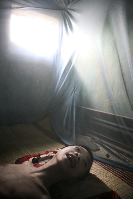 Suffering from a distorted reality, Nguyen Tran 11, gazes out from his bed at home in the Phuong Son district, Nha Trang, Vietnam.