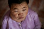 Agent Orange Victim, Thom Le Pham, gives a look of despair at home in the Benh Vien district, Vietnam.