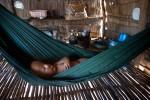 Phirum, 5, Third generation Agent Orange victim, naps in a hammock at home in Beng Melea Province, Seim Reap Cambodia. Most of his days are spent with his mother pan handling at the Angkor Wat Temples. Phirum Ung was born in south eastern Cambodia, where thousands of acres were sprayed with a chemical herbicide dioxin coded {quote}Agent Orange{quote}.