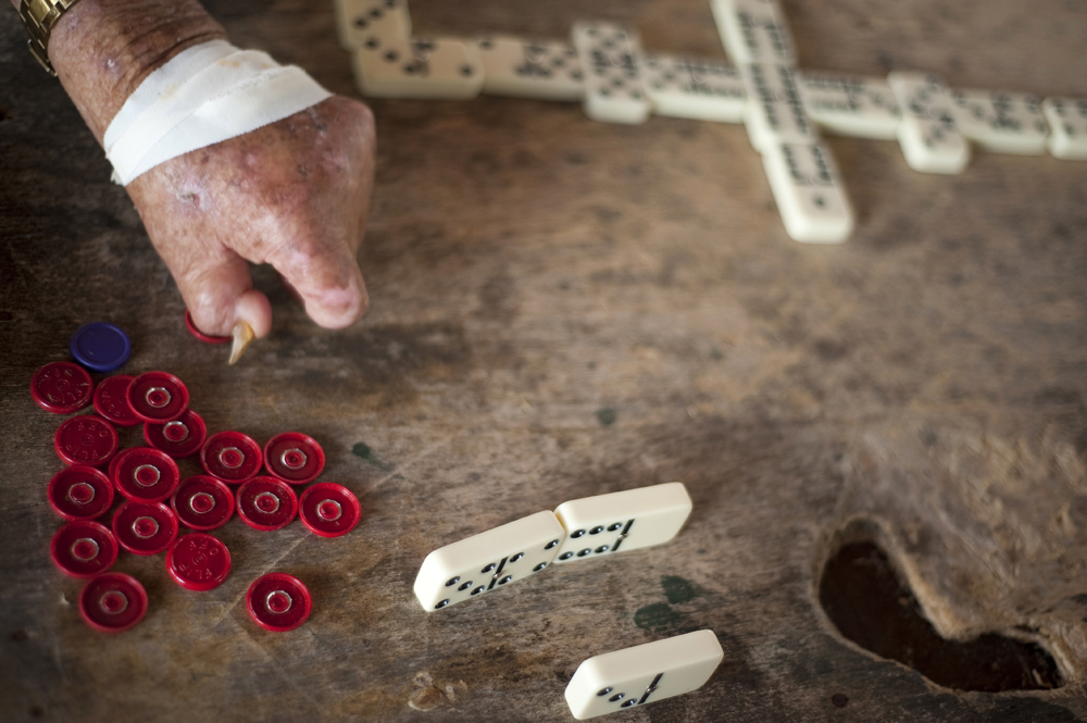 Men play dominos to pass the time at the Colonia Antonio Aleixo leprosarium on Monday, March 12, 2012 in Manaus.