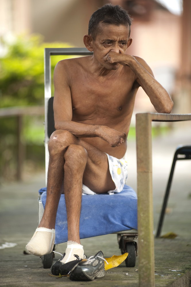 Manuel Dos Santos, 50, said he had leprosy since he was a baby and has been hospitalized at the leprosarium 20 times. Many years of working as a fisherman caused infections that resulted in the loss of his fingers and toes.