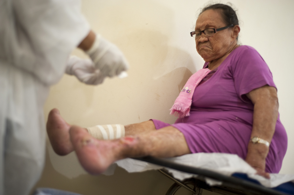 Lucia Feireira Ojamatos, 71, has her bandages changed on her infected legs at Colonia Antonio Alexio in Manaus, Brazil on Saturday, March 17, 2012. An orphan from the rural Amazon, she was brought to the leprosarium at age 14 by a woman who raised her. She never saw anyone from her home again.