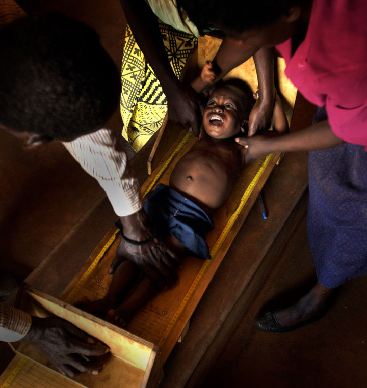 A boyscreams in fear as he is measured by doctors to assess his health. In many African cultures, the only time a person is measured is when it is for a coffin after their death. Parents had to be reassured by staff that doctors were helping their children.