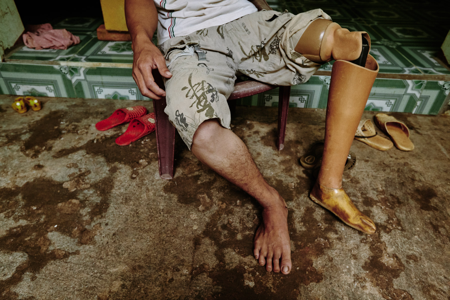 Lo Van Tan, an amputee in Son La province who lost his leg in an accident at a brick factory.