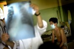 The World Health Organization recommends Intensified Case Finding for TB when someone is diagnosed with HIV. In regions, like Cambodia, where TB levels are high, early detection and treatment can prolong lives.