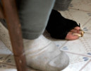Debra Rhodes keeps one foot bare due to poor hygiene conditions, despite freezing temparatures inside the facility where she lives. Rhodes, who has schizophrenia, has a caseworker who visits her and is supposed to be monitoring her health.
