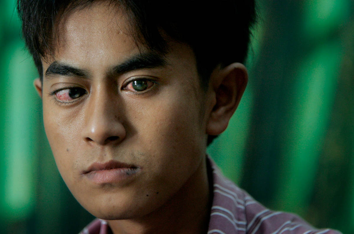 A 16-year-old boy's eyes bulge from his sockets, and show the white marks of corneal damage. He attends a screening in hopes that he will be chosen for a free surgery to help correct his eye damage.