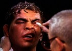 Trainers work on Arturo Gatti left eye as he sits in his corner during the fight against  Ivan Robinson on December 12, 1998 at the Taj Mahal in Atlantic City, New Jersey. Robinson won by a decision in the tenth round