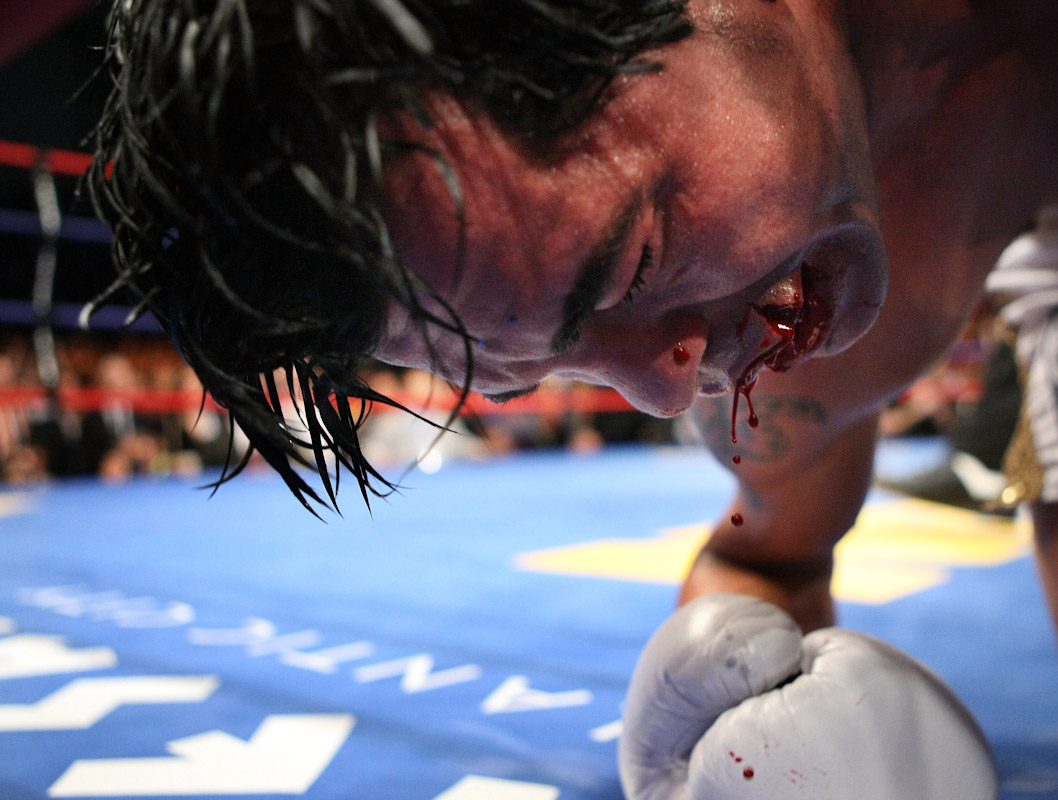Arturo Gatti has a split upper lip after being knocked down and out  by Alfonso Gomez in the seventh round of  their Welterweight fight on July 14, 2007 at Boardwalk Hall in Atlantic City, New Jersey.